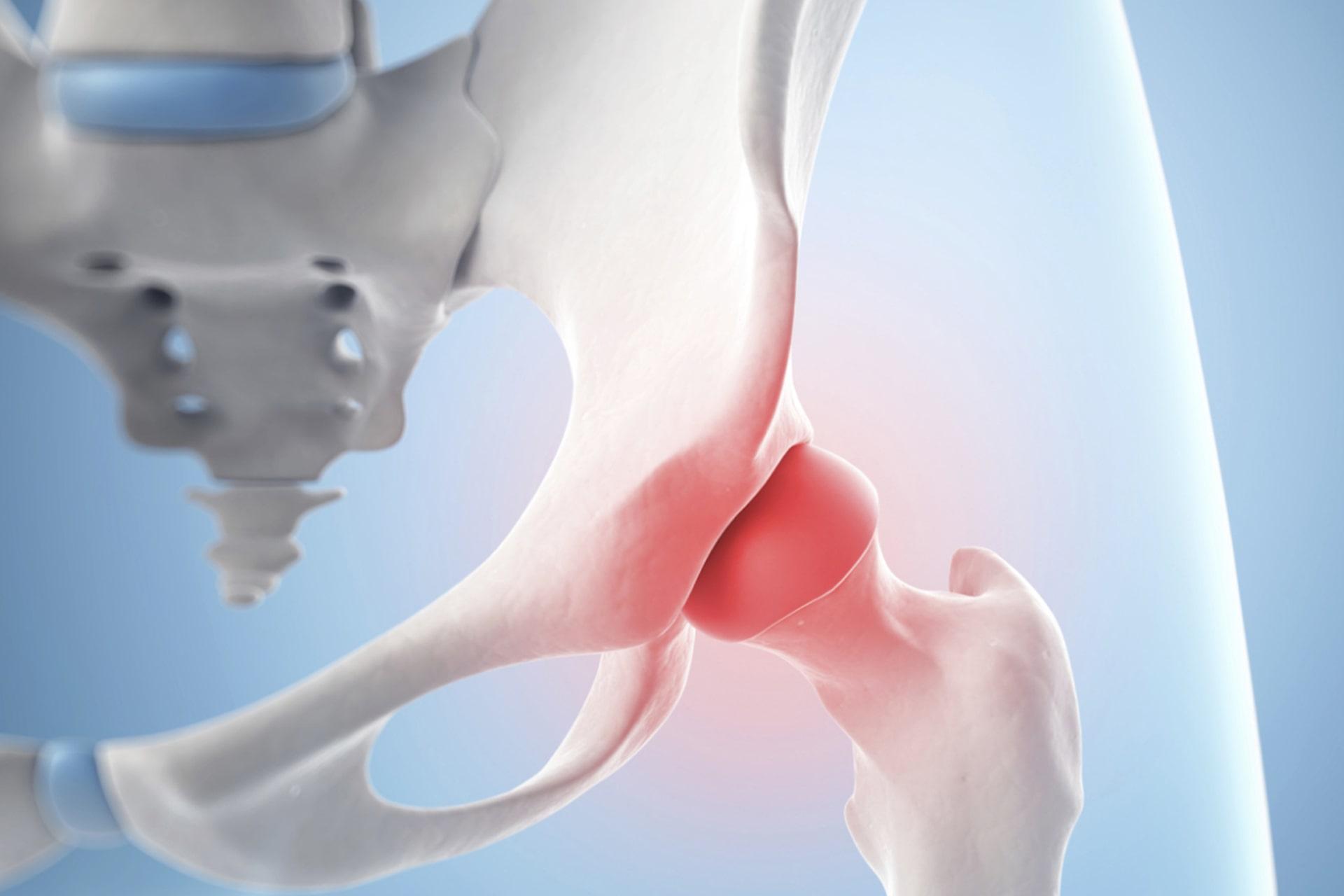 Malattie Reumatiche: con la Risonanza Magnetica Total Body la diagnosi è veloce ed efficace
